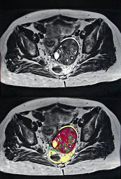 Симптомы, стадии и лечение рака яичников у женщин