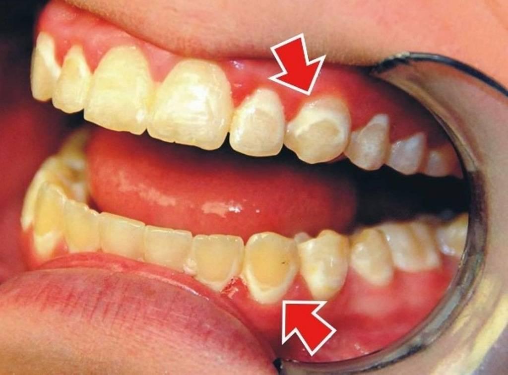 Сгнил коренной зуб. гнилые зубы, причины появления и как лечить