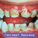 Виды гингивита и методы лечения каждого из них