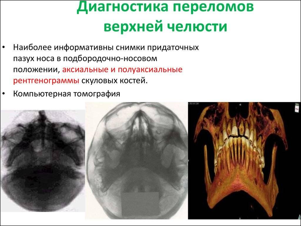 Www.travm.info травматология крупнейший медицинский портал, посвященный повреждениям человеческого организма