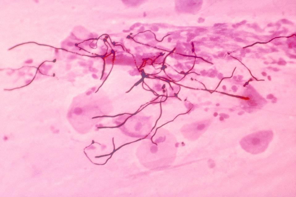 Что означает обнаружение псевдомицелия гриба в анализах