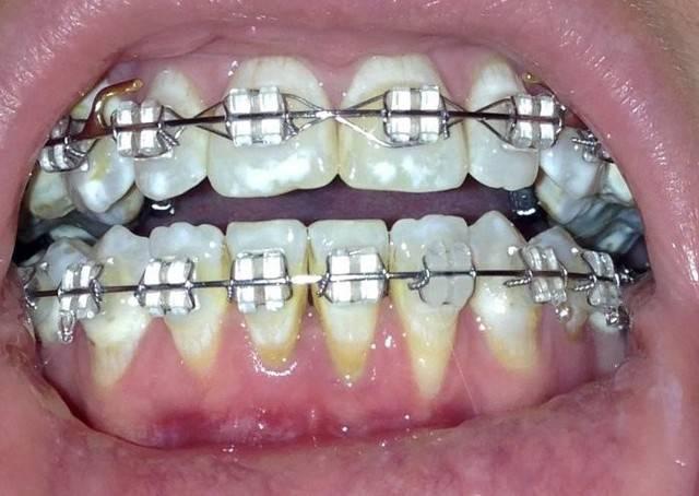 Почему опускаются десны и оголяются зубы. современные методы лечения