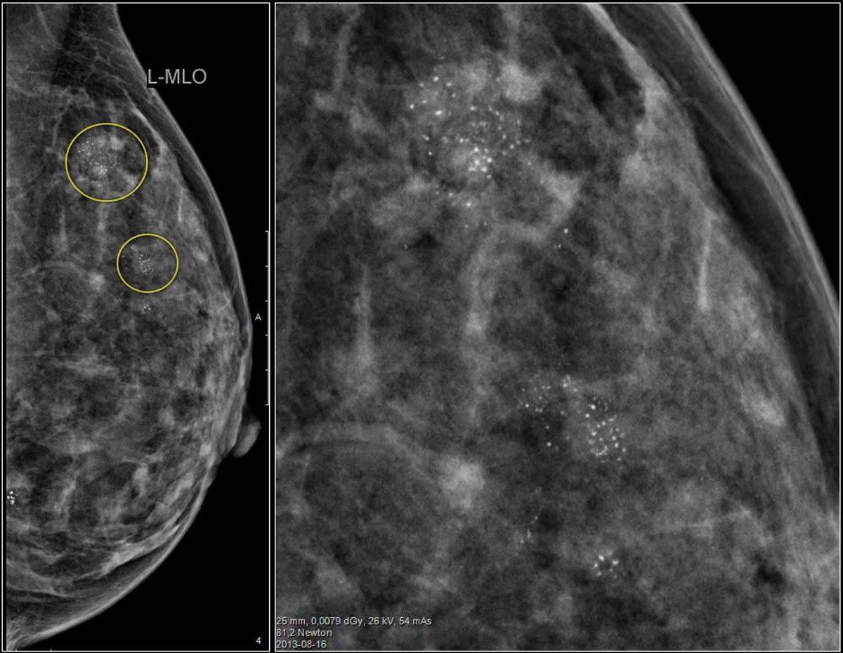 Кальцинаты в молочной железе: виды, особенности диагностики, специфика терапии
