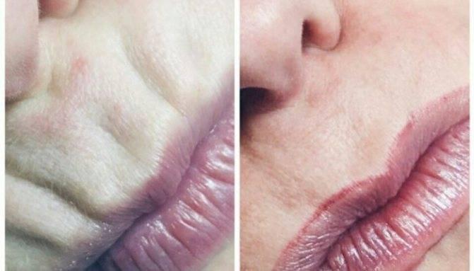 Как избавиться от морщин над верхней губой: народные и медицинские средства