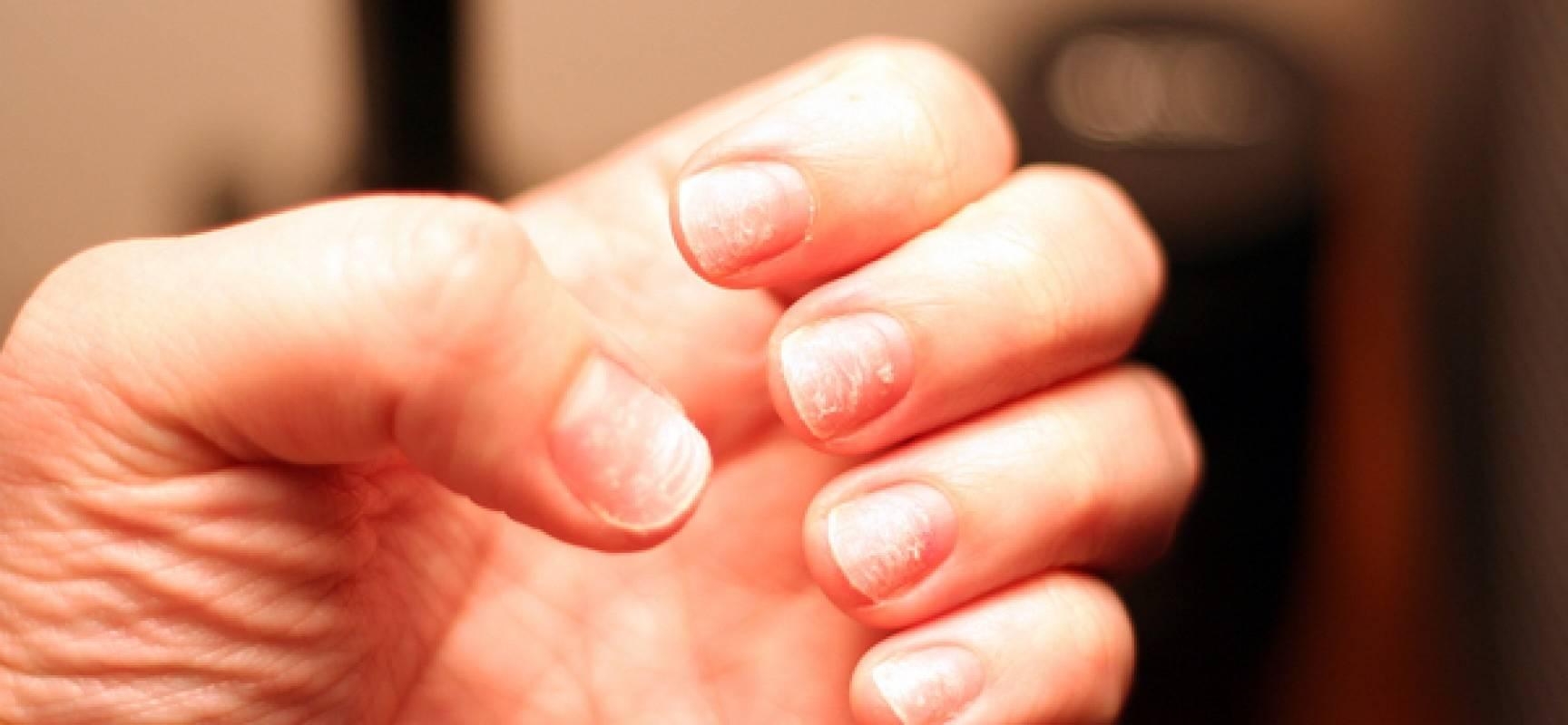 Выпадают волосы, слоятся ногти: основные причины