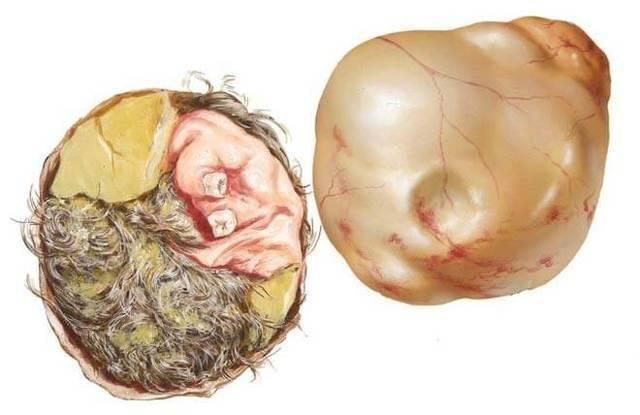 Что такое тератома яичника и как ее распознать?