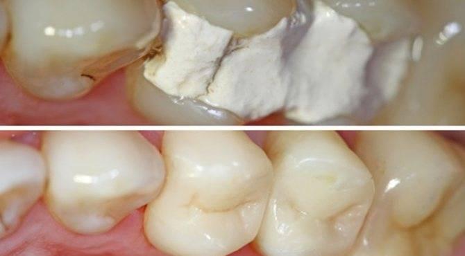 Ноет зуб под пломбой: что делать и как снять боль?