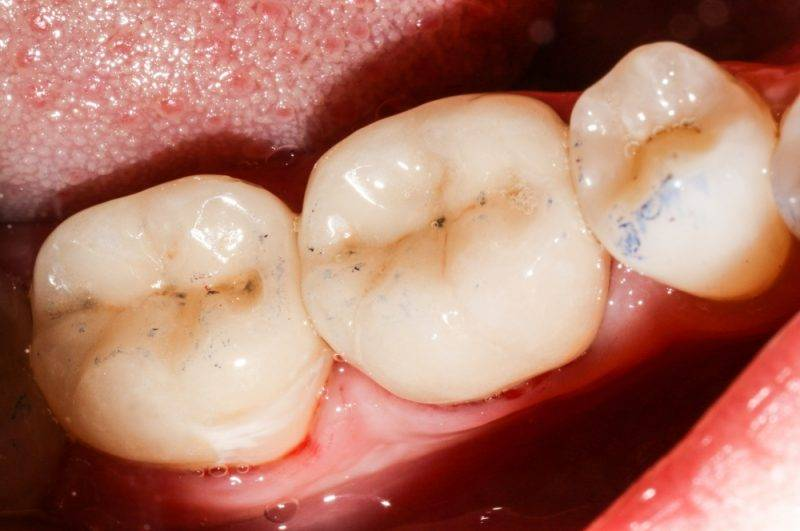 Почему зубы реагируют на холодное и горячее и что делать, если повысилась чувствительность десен