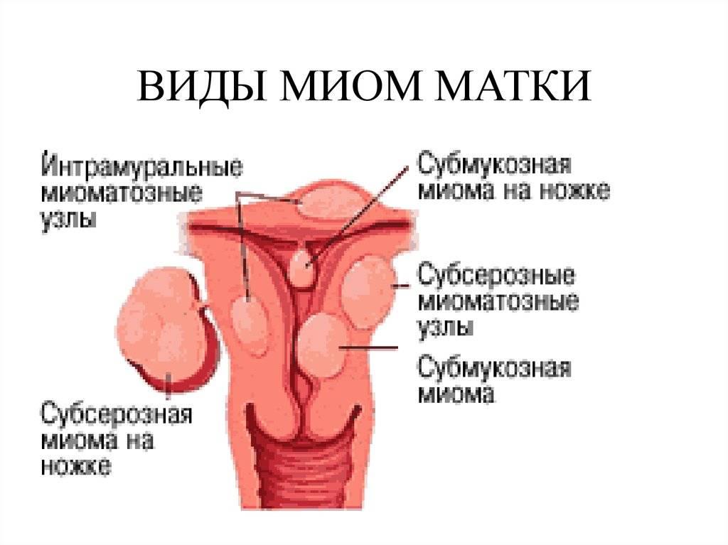 Субмукозная миома матки – чем грозит и как избавиться