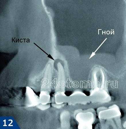 Зубной гайморита — симптомы и лечение одонтогенного гайморита