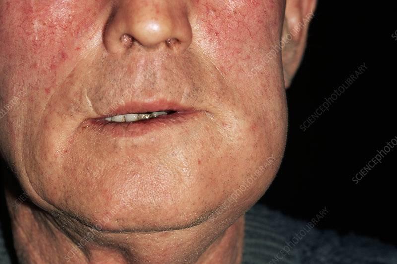 Периостит нижней челюсти код по мкб 10
