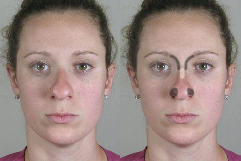 Ассиметрия губ – как исправить?