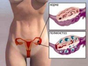 Изменения гормон при миоме