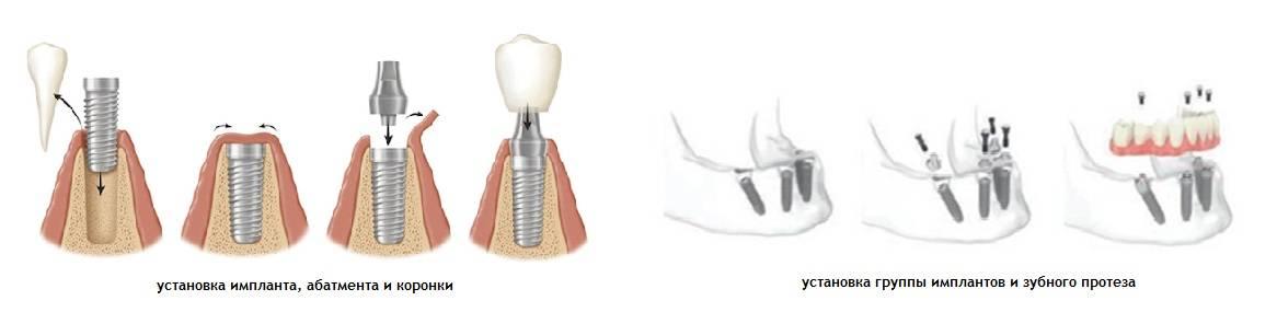 Сколько времени требуется на установку импланта зуба