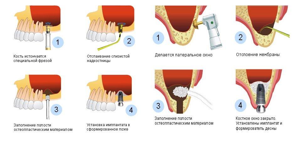 Синус-лифтинг в стоматологии: рекомендации и противопоказания
