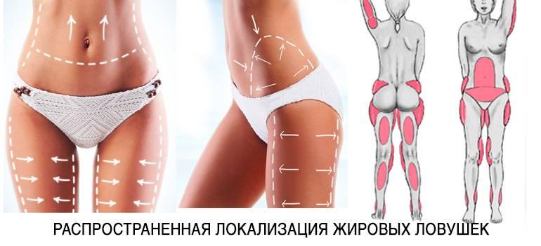 Новинки косметологии: три способа избавления от лишнего жира без операций