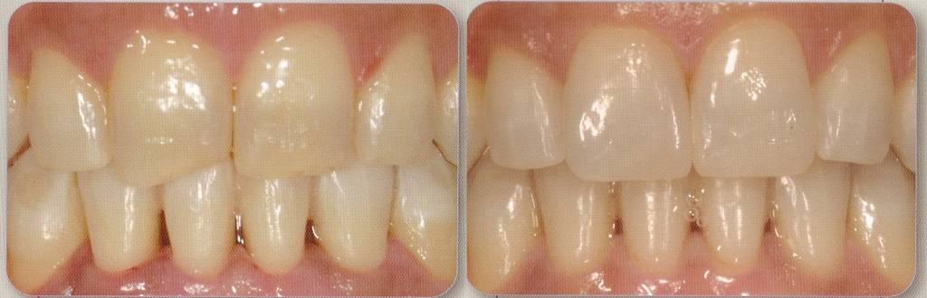 Как восстановить зубную эмаль дома? стоматологические и народные методы