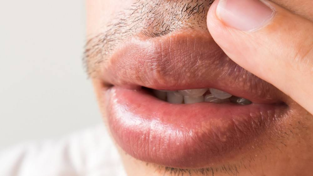 Симптомы и лечение генитального (полового) герпеса в интимной зоне у мужчин