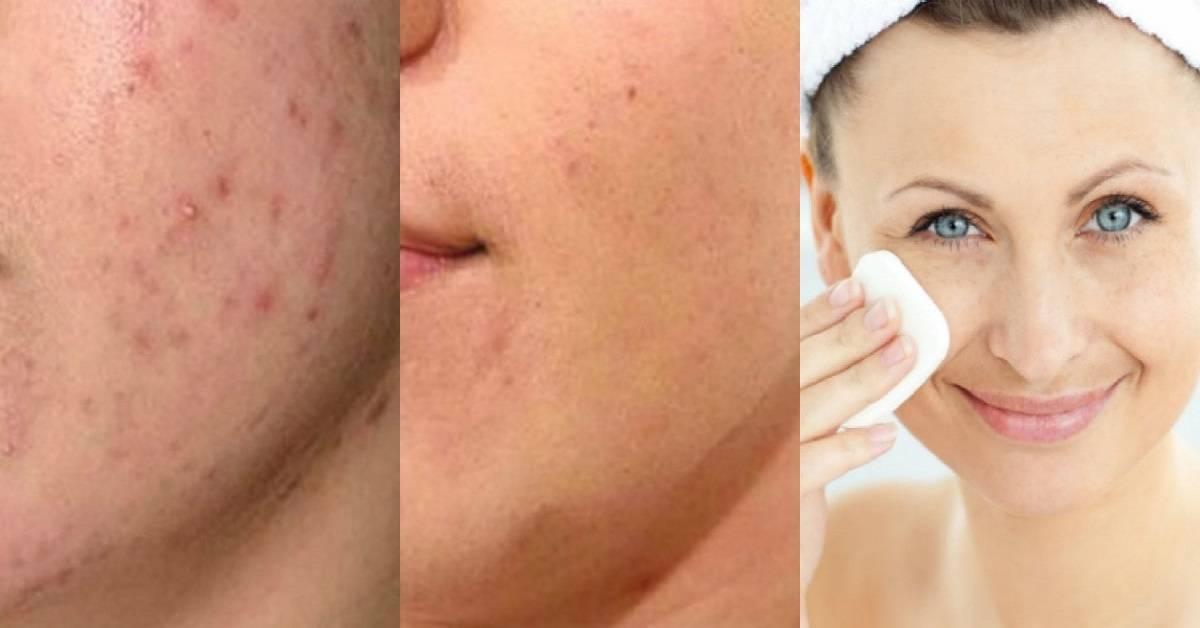 Можно ли использовать яблочный уксус для ухода за кожей лица? состав, польза и вред продукта