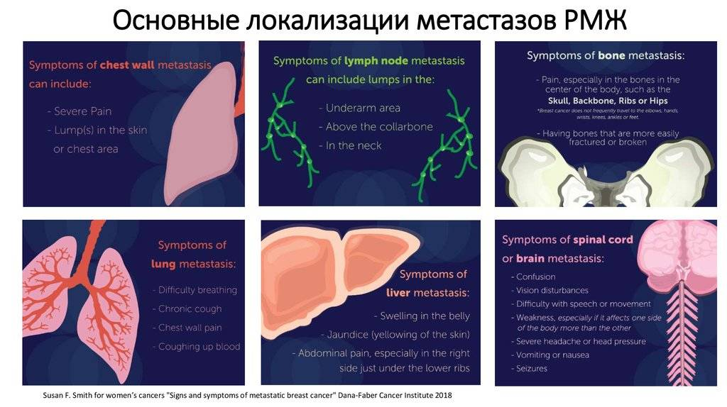 Метастазы: чем они опасны и как влияют на течение раковой патологии?