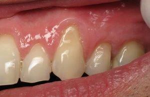 Чеснок от зубной боли: компресс на запястье в домашних условиях
