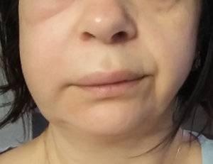 Опухла щека у ребенка с одной стороны: почему и что делать, если не болит зуб?