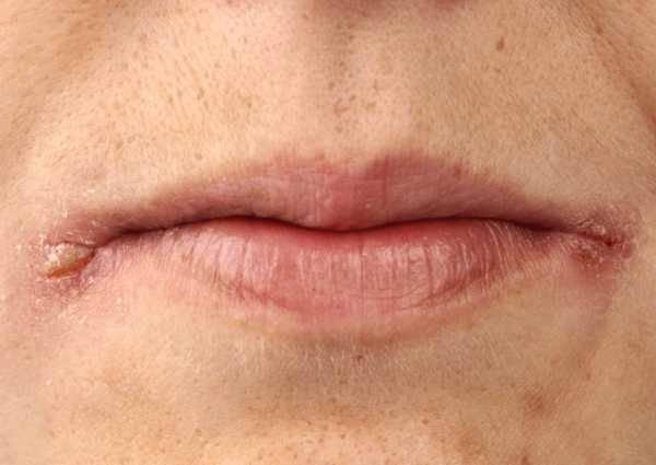 Заеды в уголках рта: причины появления, виды и лечение заед на губах у взрослых и детей мазями, народными средствами и другими способами с видео-рекомендациями специалистов
