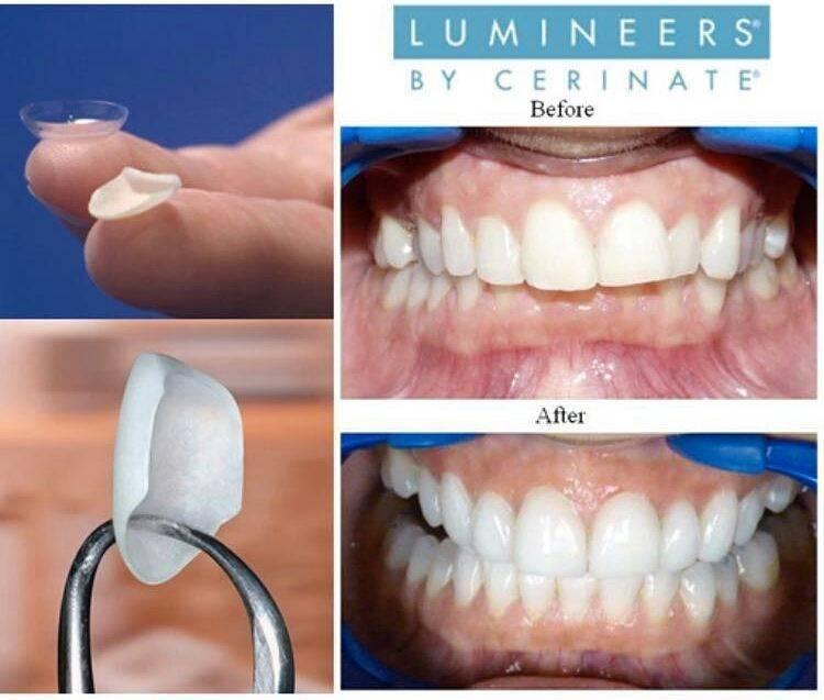 Люминиры: преимущества, показания к реставрации зубов