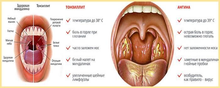 Как выглядит рак миндалин?