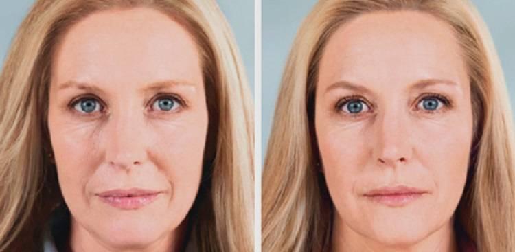 Биоревитализация лица: эффект, фото до и после, отзывы, стоимость