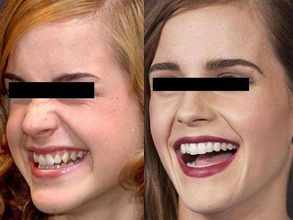 Хирургическая пластика уздечки верхней губы у детей и взрослых