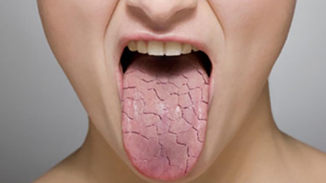Диагностика заболеваний человека по языку