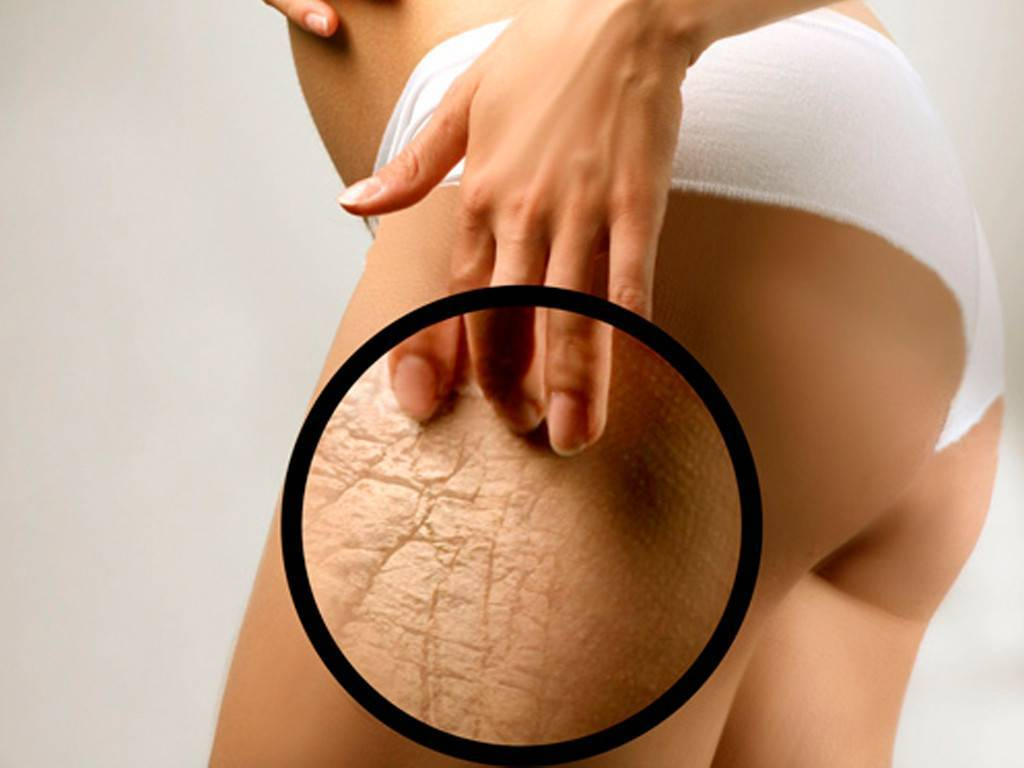 Удаление растяжек и шрамов