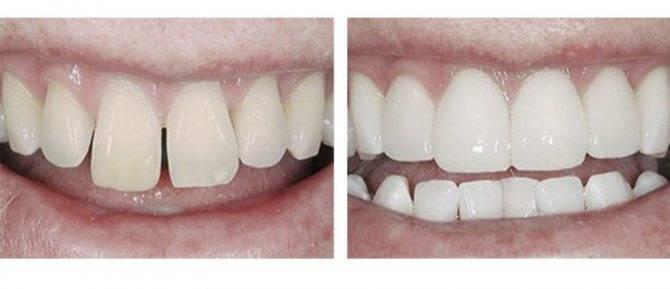 Все о художественной реставрации зубов – показания, современные методики и актуальные расценки