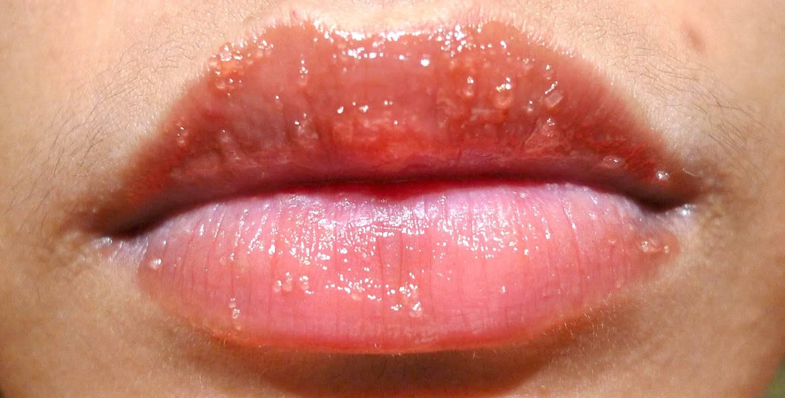 Болячка на губе – симптомы и разновидности заболевания: как лечить язвочку, средства, чтобы избавиться от ранки