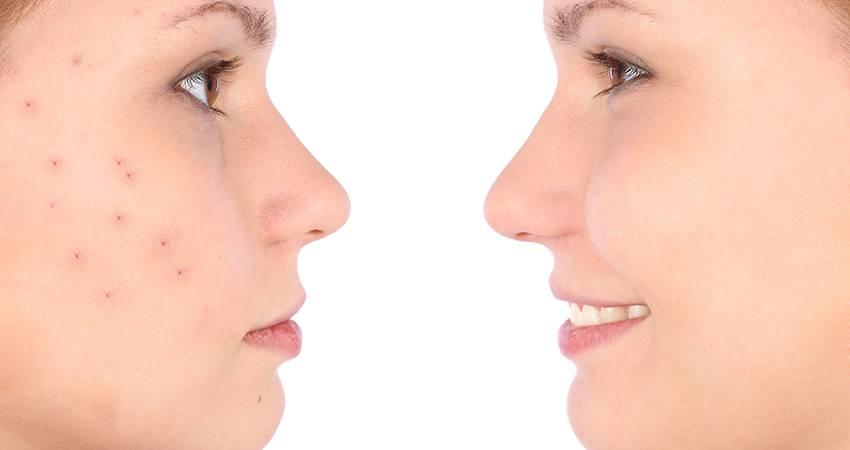 Аллергия на лице – причины появления и лечение недуга