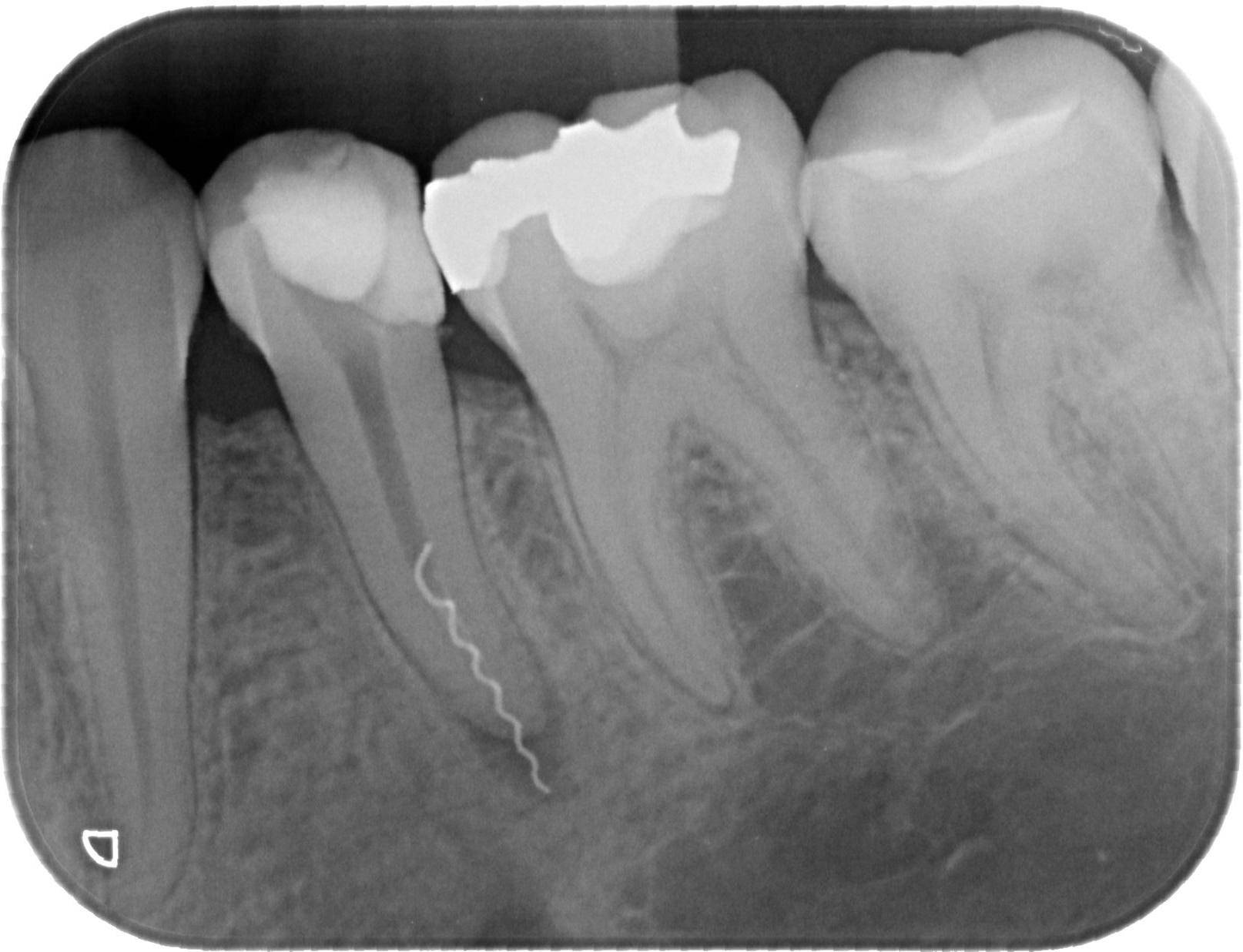 Болит зуб без нерва: причины, как убрать боль