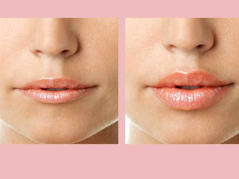 Увеличение губ гиалуроновой кислотой — особенности процедуры о которых важно знать