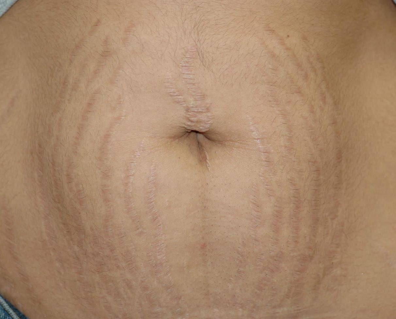 Список мазей и кремов от растяжек на животе при беременности: чем мазать лучше?