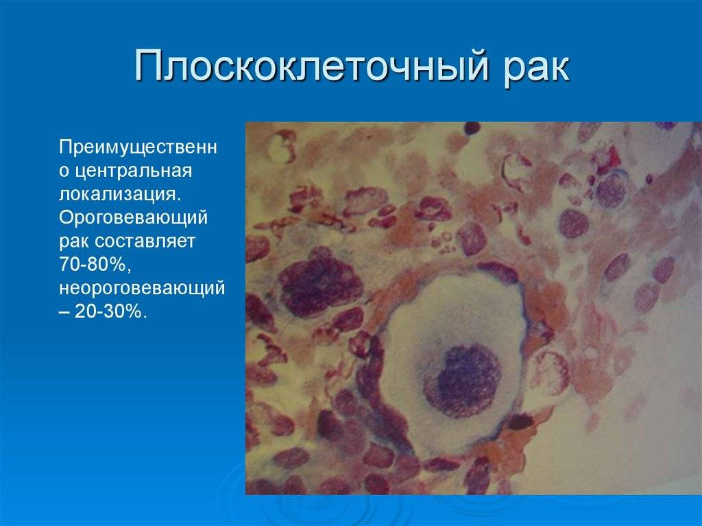 Рак шейки матки. симптомы и признаки, причины, стадии, профилактика болезни.