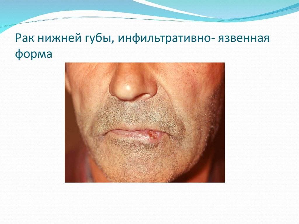 Классификация и методы лечения плоскоклеточного рака полости рта