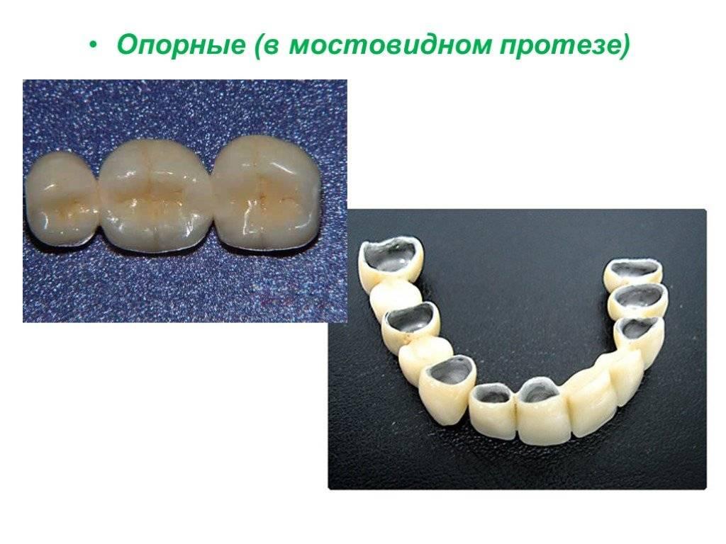 Цельнолитые мостовидные протезы — клинико-лабораторные этапы изготовления и установка