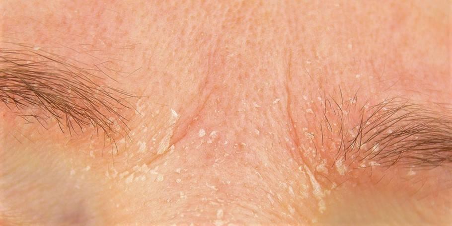 Шелушатся брови
