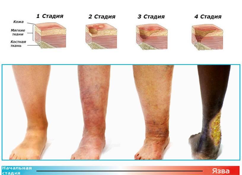 Антибиотики при трофических язвах на ногах