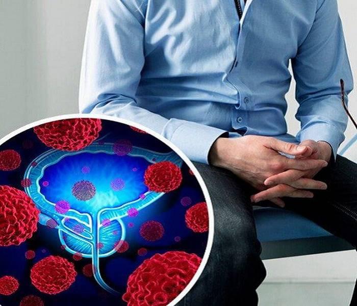 Как в домашних условиях проверить бесплодие у мужчин