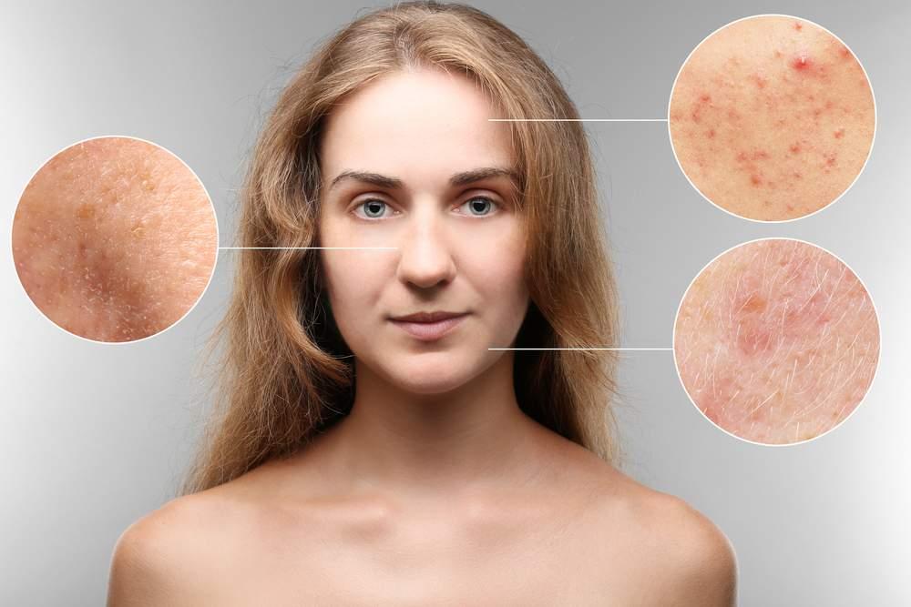 Причины появления аллергических прыщей на лице и их лечение
