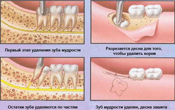Правила ухода за лункой после удаления зуба