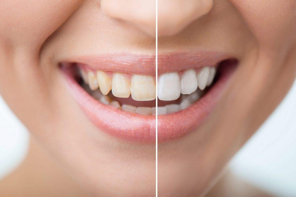 Варианты отбеливания зубов после ношения брекетов