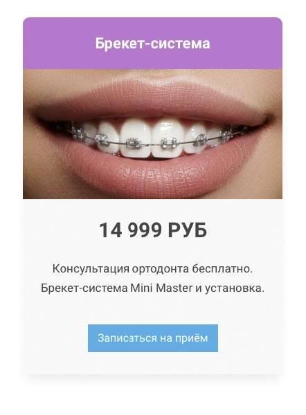 Брекеты mini master в москве