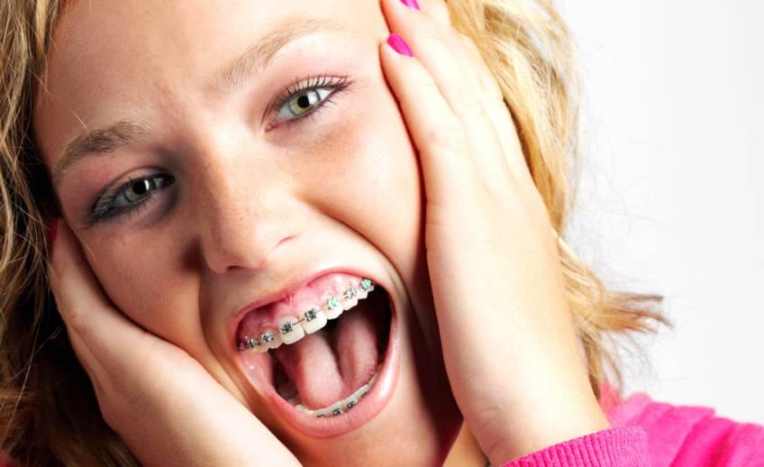 Могут ли шататься и выпадать зубы при ношении брекетов
